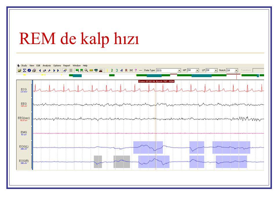 REM de kalp hızı