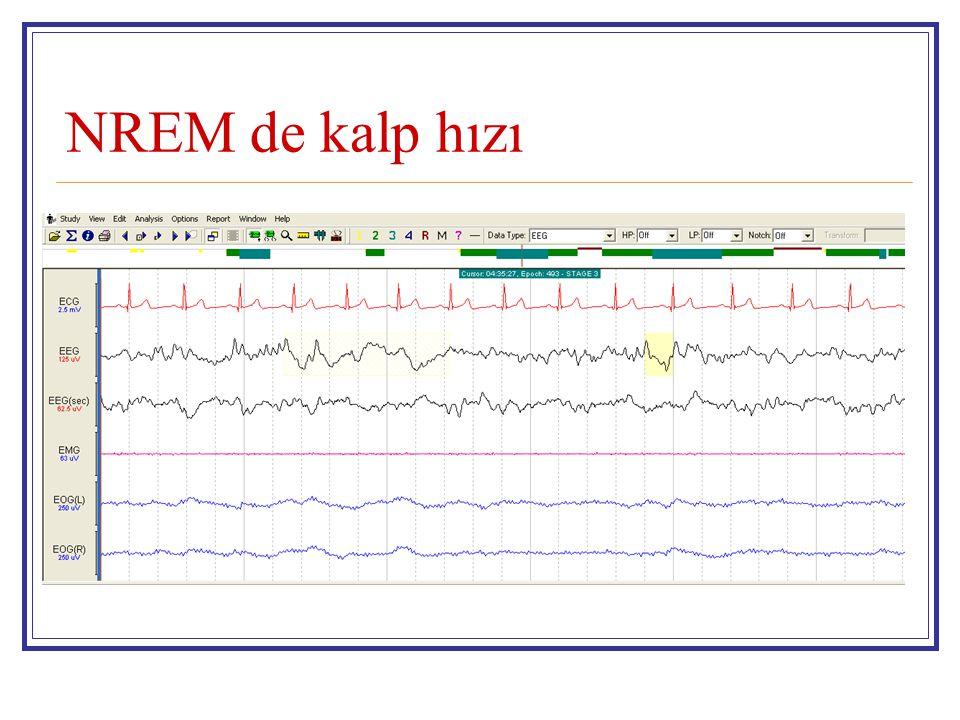 NREM de kalp hızı