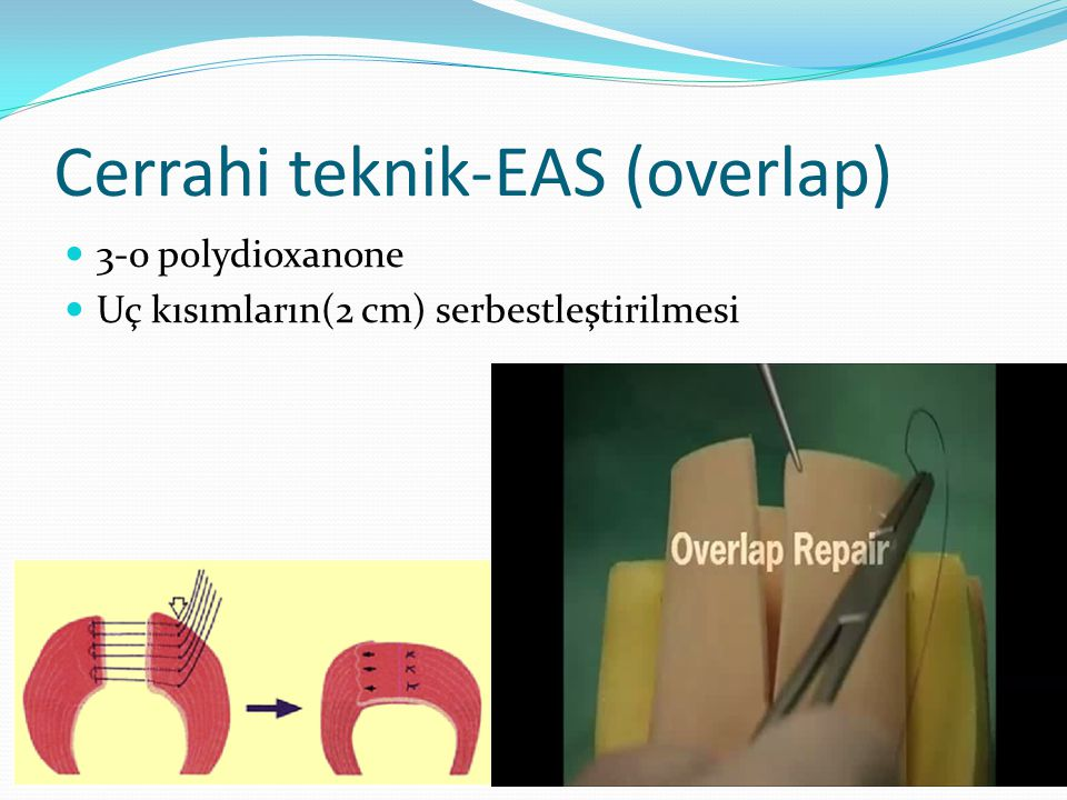Cerrahi teknik-EAS (overlap) 3-0 polydioxanone Uç kısımların(2 cm) serbestleştirilmesi