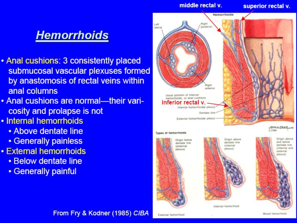 Eksternal hemoroidler linea dentatanın altından gelişir.