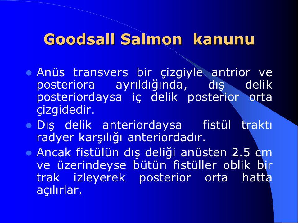 Goodsall Salmon kanunu Anüs transvers bir çizgiyle antrior ve posteriora ayrıldığında, dış delik posteriordaysa iç delik posterior orta çizgidedir. Dı