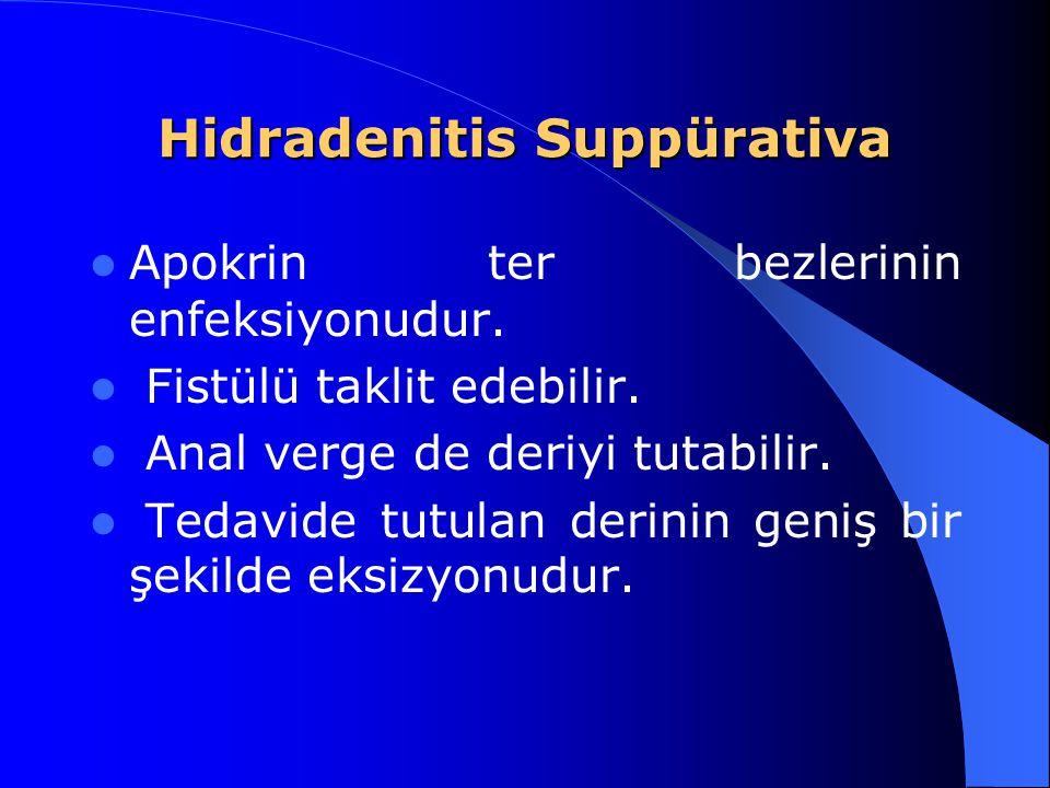 Hidradenitis Suppürativa Apokrin ter bezlerinin enfeksiyonudur. Fistülü taklit edebilir. Anal verge de deriyi tutabilir. Tedavide tutulan derinin geni