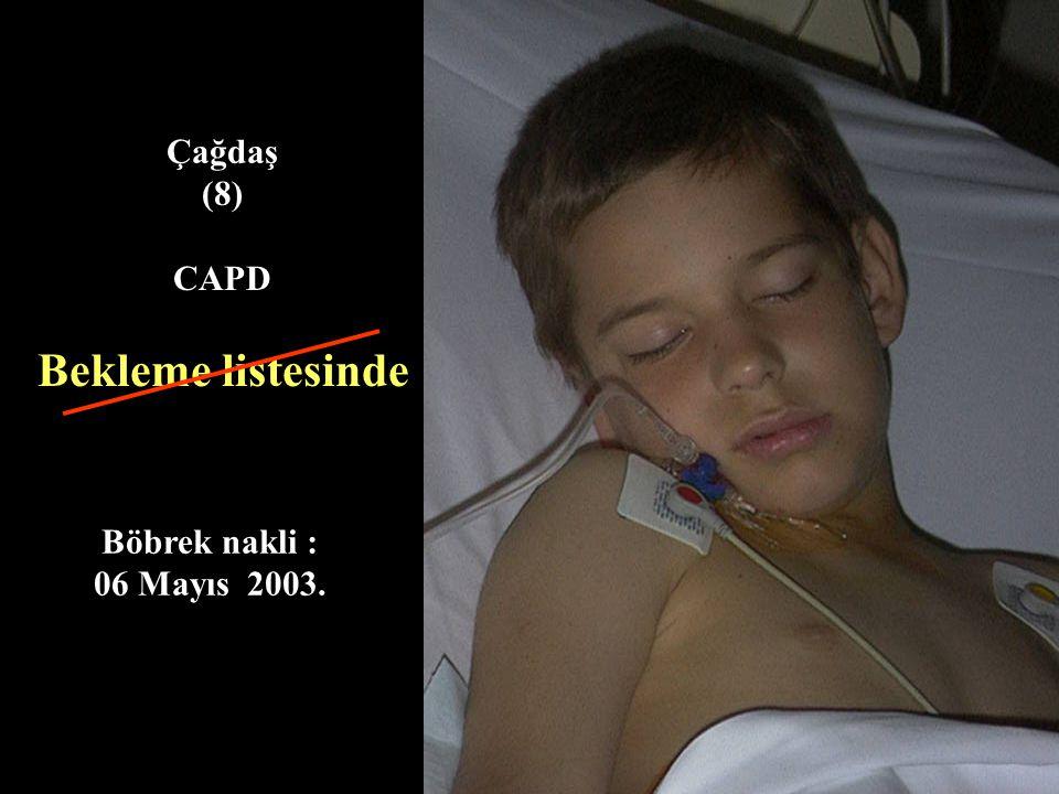 Sadike (30) Böbrek Nakli : 1989 Evlilik : 1999 Murat'ın doğumu: 2000 Sağlık durumu iyi, Böbrek fonksyon testleri normal
