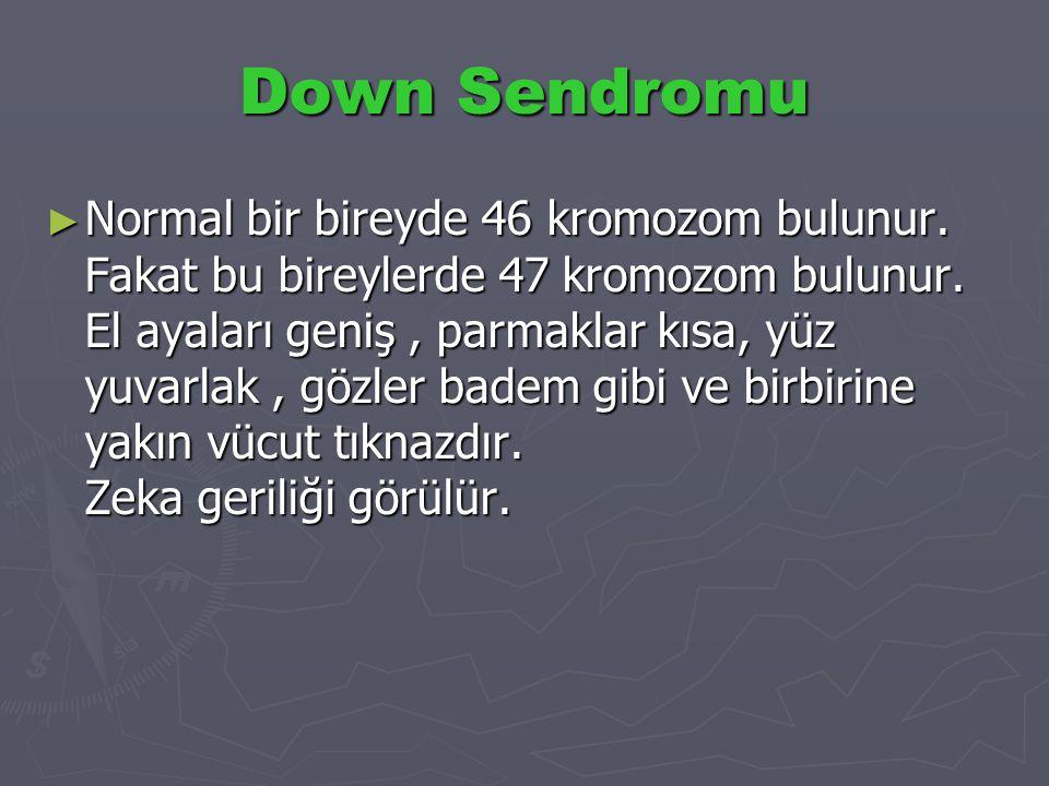 Down Sendromu ► Normal bir bireyde 46 kromozom bulunur. Fakat bu bireylerde 47 kromozom bulunur. El ayaları geniş, parmaklar kısa, yüz yuvarlak, gözle