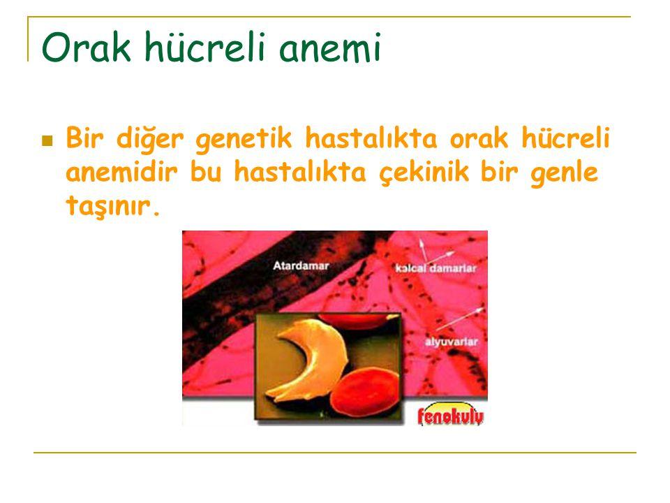 Orak hücreli anemi Bir diğer genetik hastalıkta orak hücreli anemidir bu hastalıkta çekinik bir genle taşınır.