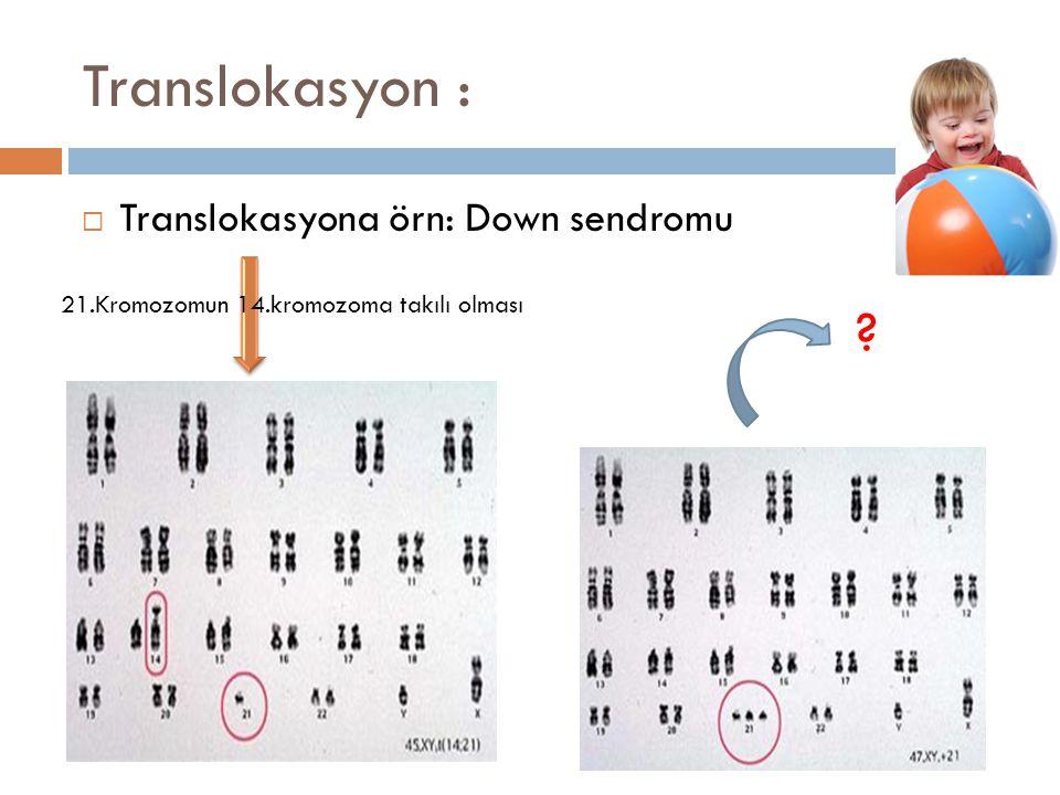 Translokasyon :  Translokasyona örn: Down sendromu ? 21.Kromozomun 14.kromozoma takılı olması