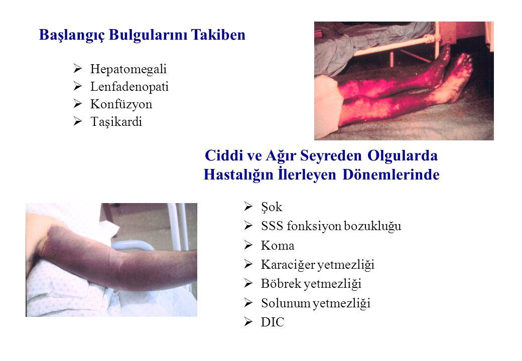  Hepatomegali  Lenfadenopati  Konfüzyon  Taşikardi Başlangıç Bulgularını Takiben Ciddi ve Ağır Seyreden Olgularda Hastalığın İlerleyen Dönemlerinde  Şok  SSS fonksiyon bozukluğu  Koma  Karaciğer yetmezliği  Böbrek yetmezliği  Solunum yetmezliği  DIC