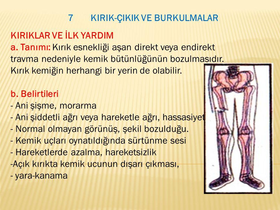 7 KIRIK-ÇIKIK VE BURKULMALAR KIRIKLAR VE İLK YARDIM a. Tanımı: Kırık esnekliği aşan direkt veya endirekt travma nedeniyle kemik bütünlüğünün bozulması