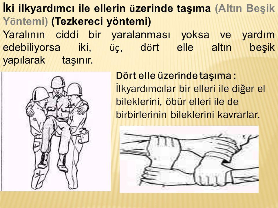 İki ilkyardımcı ile ellerin ü zerinde taşıma (Altın Beşik Y ö ntemi) (Tezkereci yöntemi) Yaralının ciddi bir yaralanması yoksa ve yardım edebiliyorsa