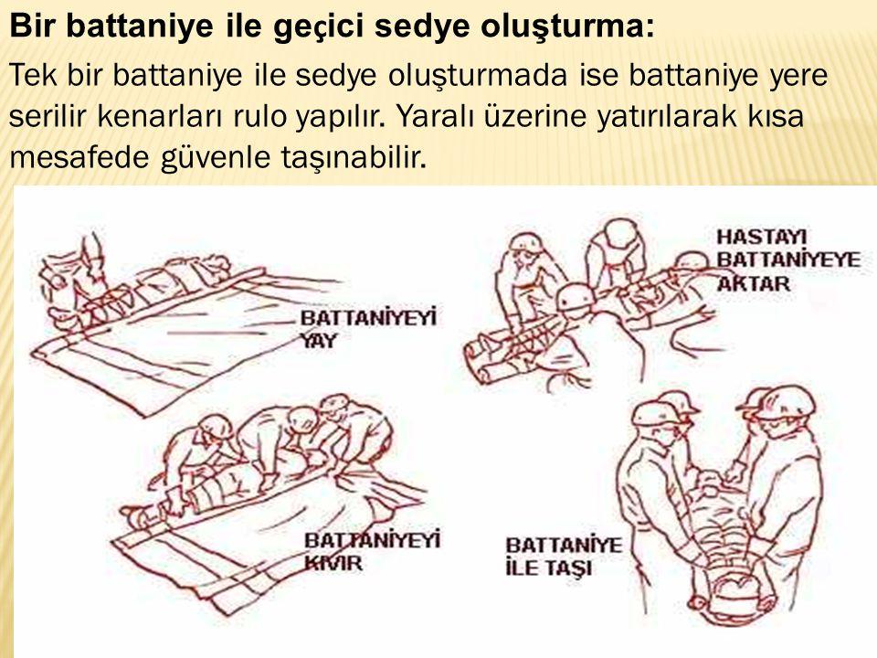 Bir battaniye ile ge ç ici sedye oluşturma: Tek bir battaniye ile sedye oluşturmada ise battaniye yere serilir kenarları rulo yapılır. Yaralı üzerine