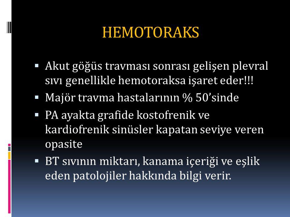 HEMOTORAKS  Akut göğüs travması sonrası gelişen plevral sıvı genellikle hemotoraksa işaret eder!!.