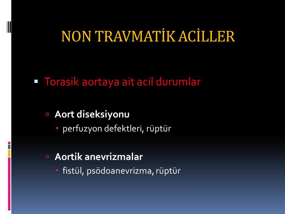 NON TRAVMATİK ACİLLER  Torasik aortaya ait acil durumlar  Aort diseksiyonu  perfuzyon defektleri, rüptür  Aortik anevrizmalar  fistül, psödoanevrizma, rüptür