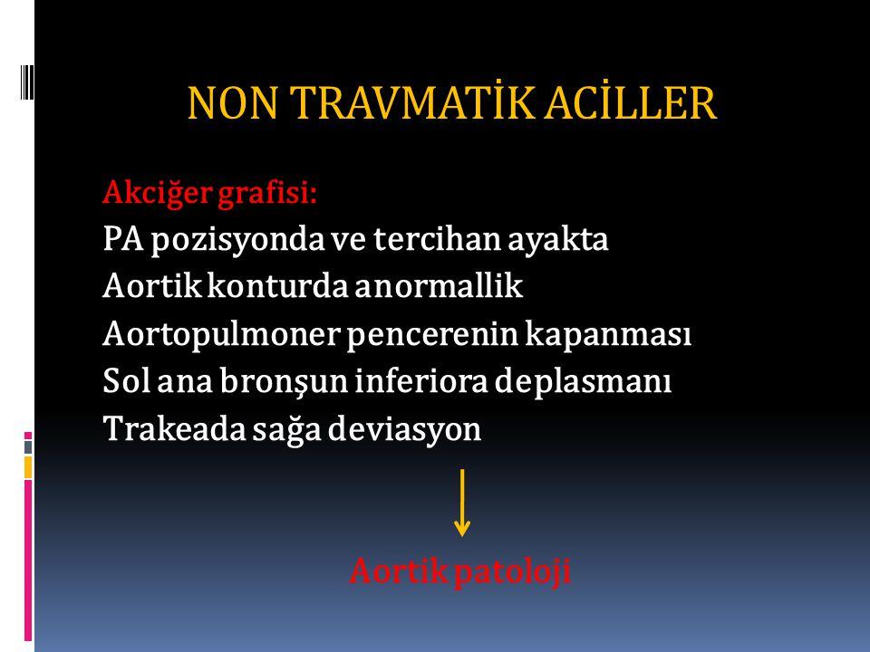 NON TRAVMATİK ACİLLER Akciğer grafisi: PA pozisyonda ve tercihan ayakta Aortik konturda anormallik Aortopulmoner pencerenin kapanması Sol ana bronşun inferiora deplasmanı Trakeada sağa deviasyon Aortik patoloji