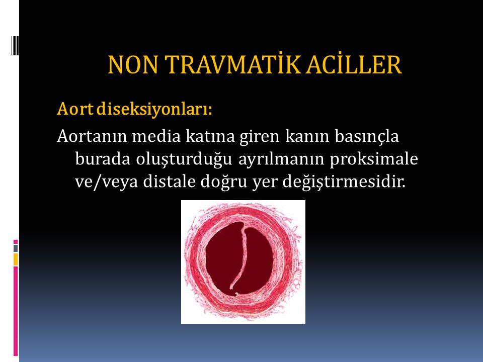 NON TRAVMATİK ACİLLER Aort diseksiyonları: Aortanın media katına giren kanın basınçla burada oluşturduğu ayrılmanın proksimale ve/veya distale doğru yer değiştirmesidir.