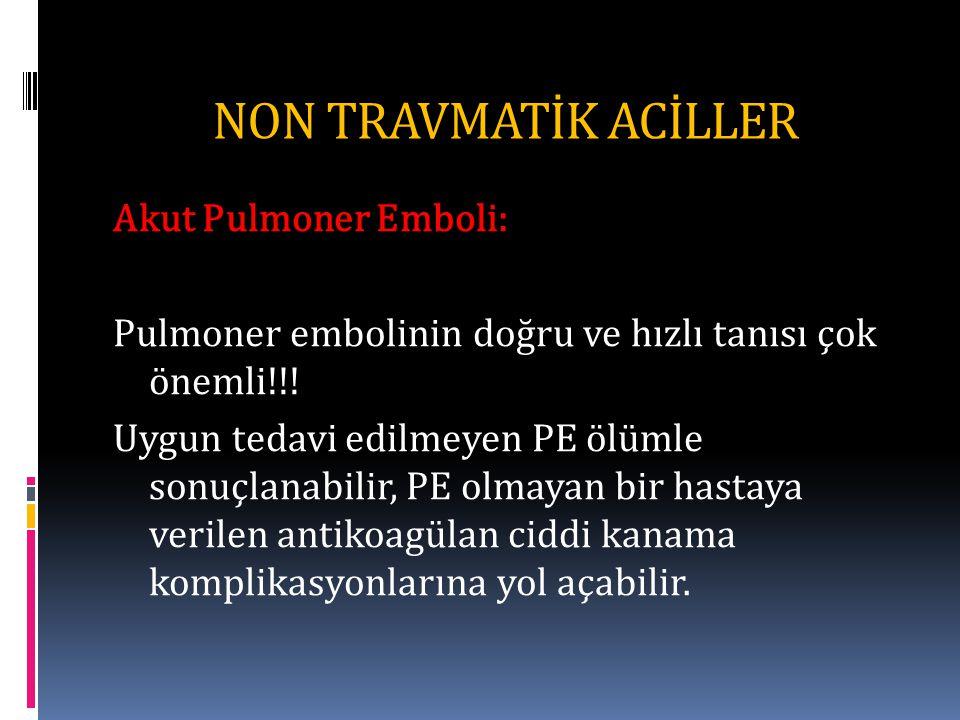 NON TRAVMATİK ACİLLER Akut Pulmoner Emboli: Pulmoner embolinin doğru ve hızlı tanısı çok önemli!!.