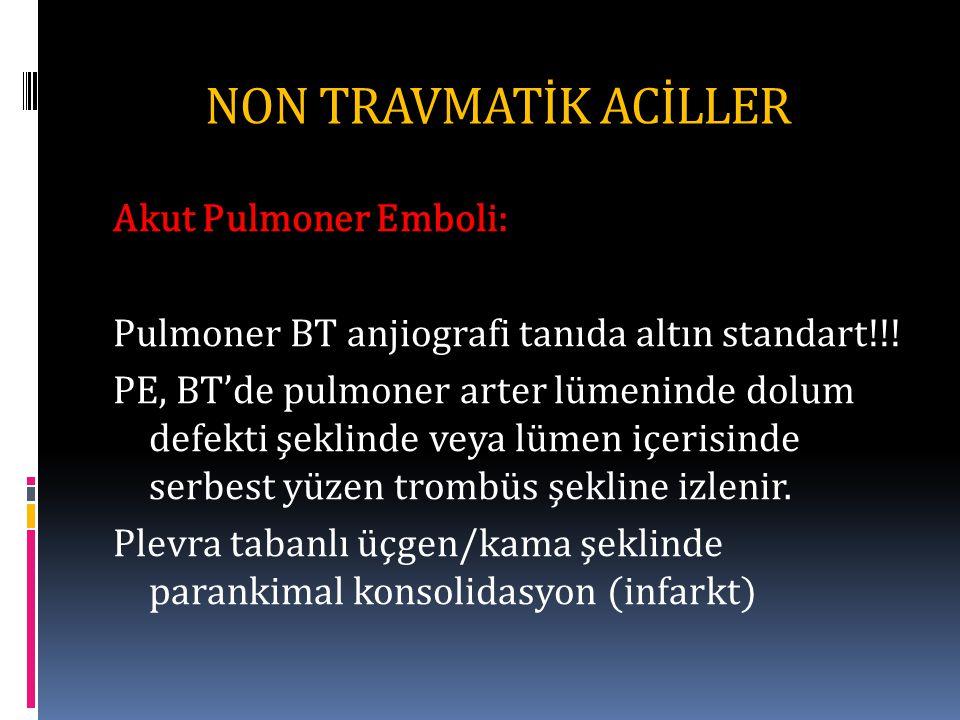 NON TRAVMATİK ACİLLER Akut Pulmoner Emboli: Pulmoner BT anjiografi tanıda altın standart!!.