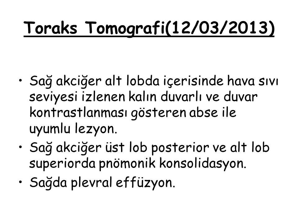 Toraks Tomografi(12/03/2013) Sağ akciğer alt lobda içerisinde hava sıvı seviyesi izlenen kalın duvarlı ve duvar kontrastlanması gösteren abse ile uyum
