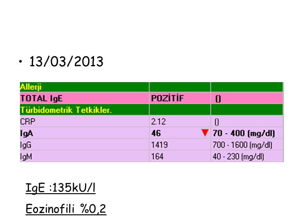 13/03/2013 IgE :135kU/l Eozinofili %0,2