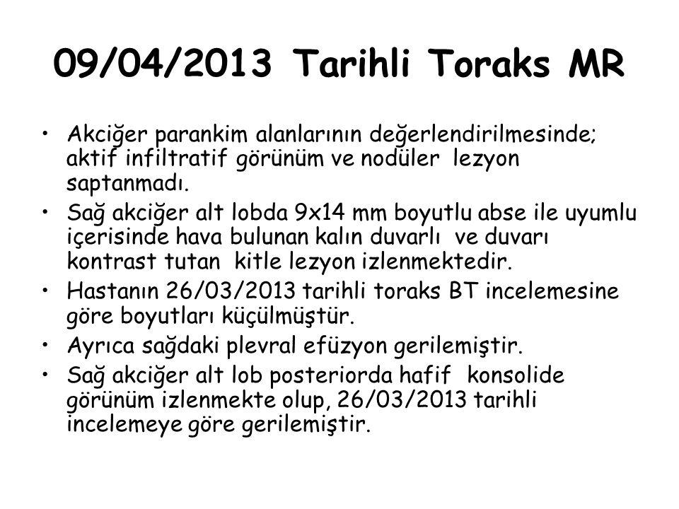 09/04/2013 Tarihli Toraks MR Akciğer parankim alanlarının değerlendirilmesinde; aktif infiltratif görünüm ve nodüler lezyon saptanmadı. Sağ akciğer al