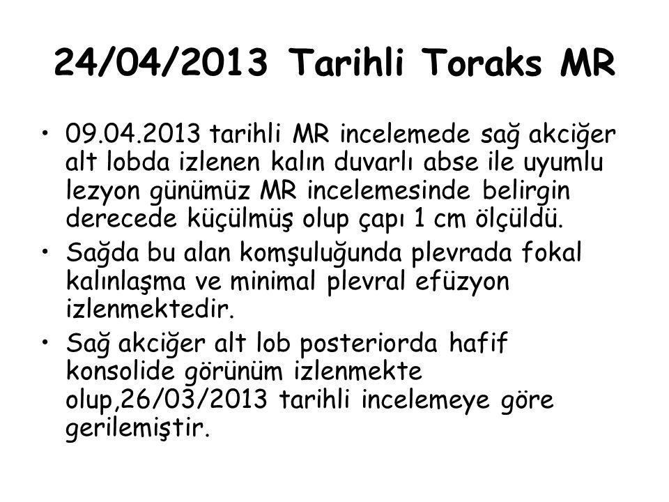 24/04/2013 Tarihli Toraks MR 09.04.2013 tarihli MR incelemede sağ akciğer alt lobda izlenen kalın duvarlı abse ile uyumlu lezyon günümüz MR incelemesi
