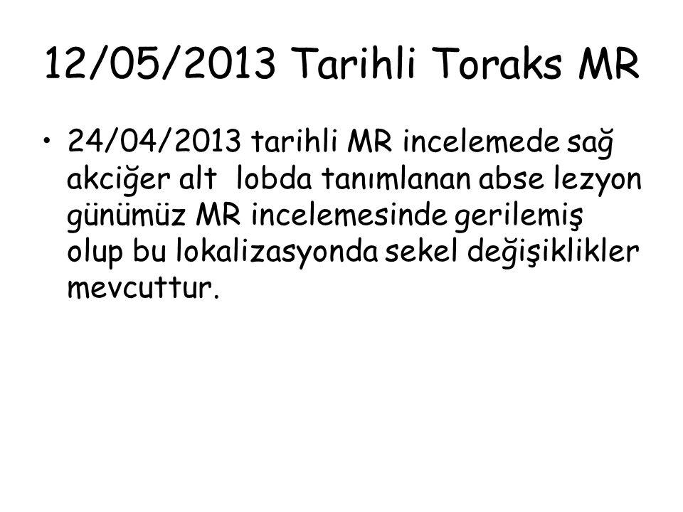12/05/2013 Tarihli Toraks MR 24/04/2013 tarihli MR incelemede sağ akciğer alt lobda tanımlanan abse lezyon günümüz MR incelemesinde gerilemiş olup bu