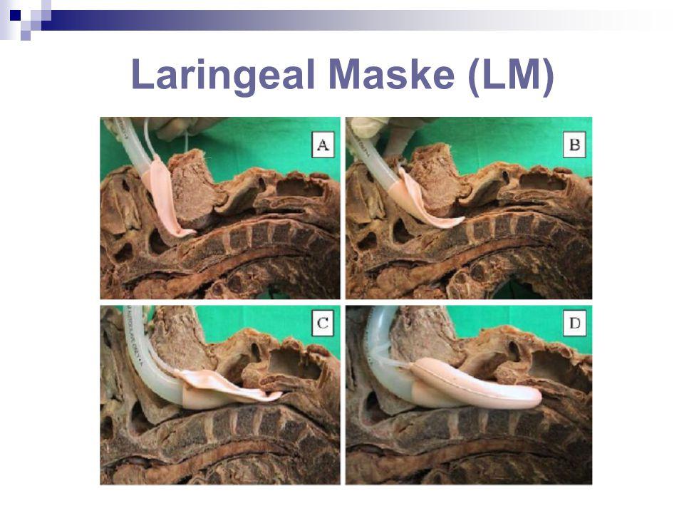 Laringeal Maske (LM)