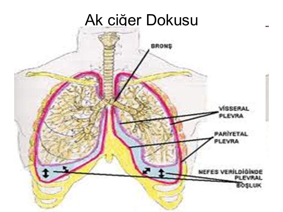 Ak ciğer Dokusu