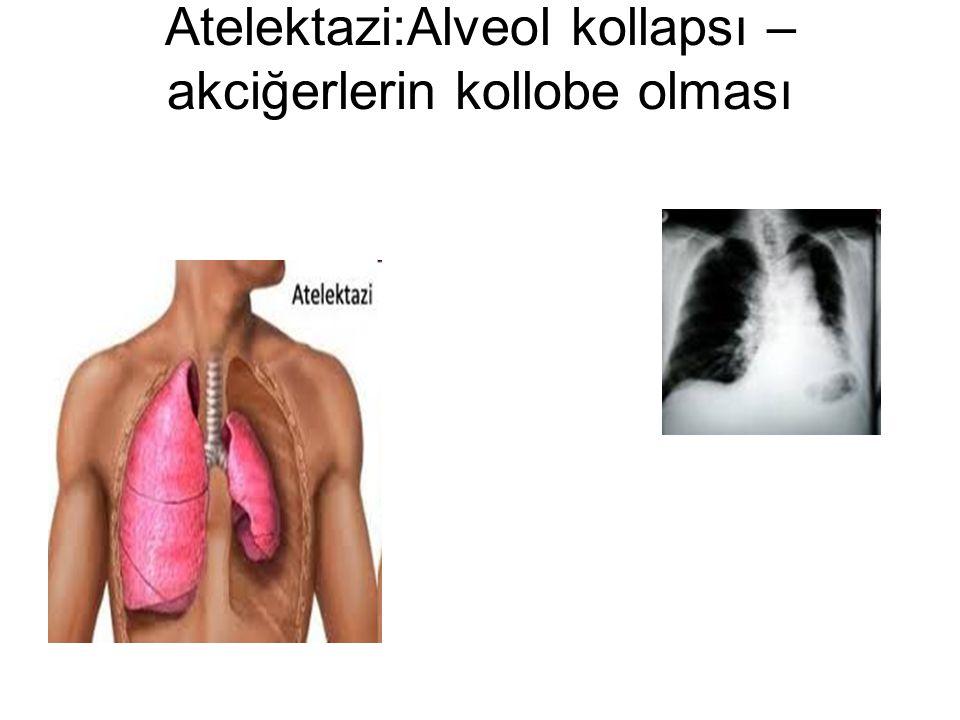 Atelektazi:Alveol kollapsı – akciğerlerin kollobe olması