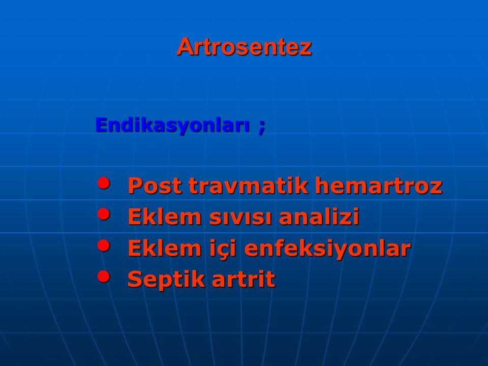 Artrosentez Endikasyonları ; Post travmatik hemartroz Post travmatik hemartroz Eklem sıvısı analizi Eklem sıvısı analizi Eklem içi enfeksiyonlar Eklem içi enfeksiyonlar Septik artrit Septik artrit
