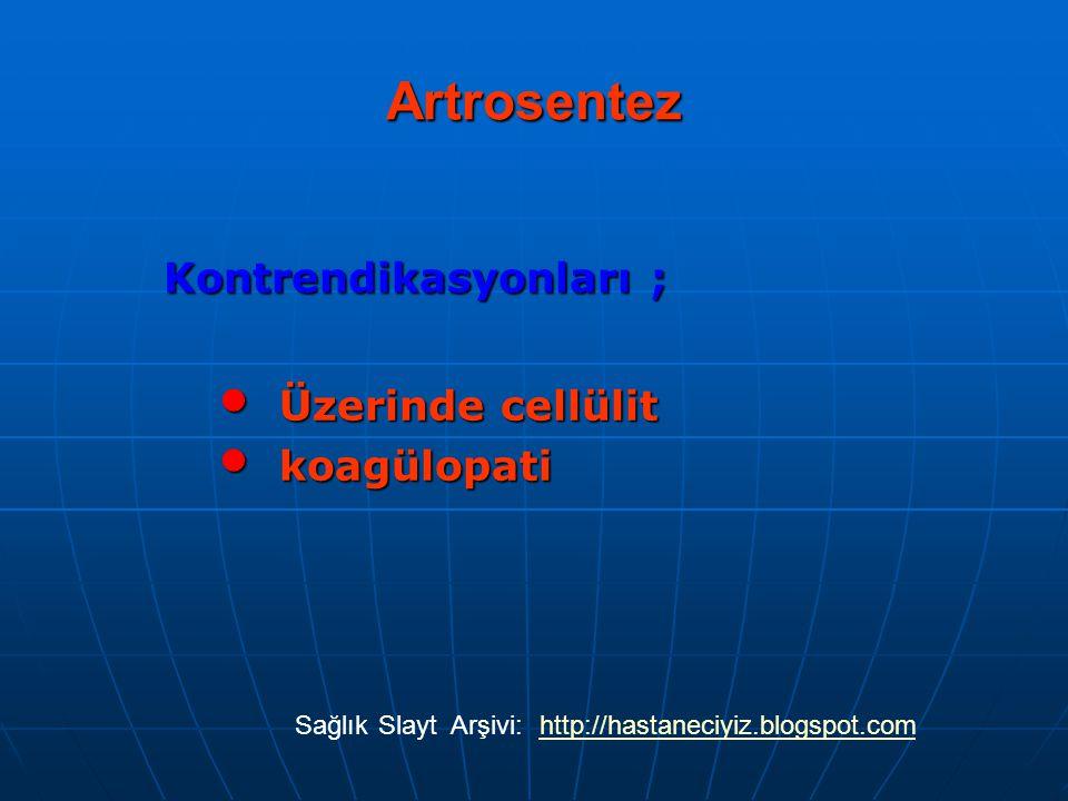 Artrosentez Kontrendikasyonları ; Üzerinde cellülit Üzerinde cellülit koagülopati koagülopati SağlıkSlaytArşivi:http://hastaneciyiz.blogspot.com