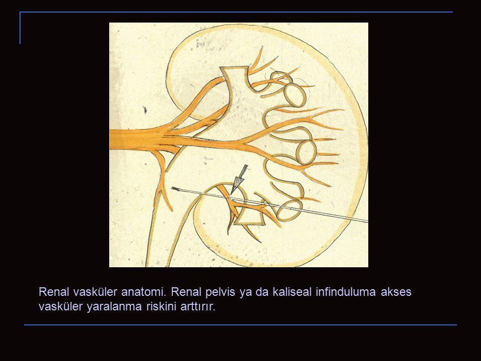 Renal vasküler anatomi. Renal pelvis ya da kaliseal infinduluma akses vasküler yaralanma riskini arttırır.
