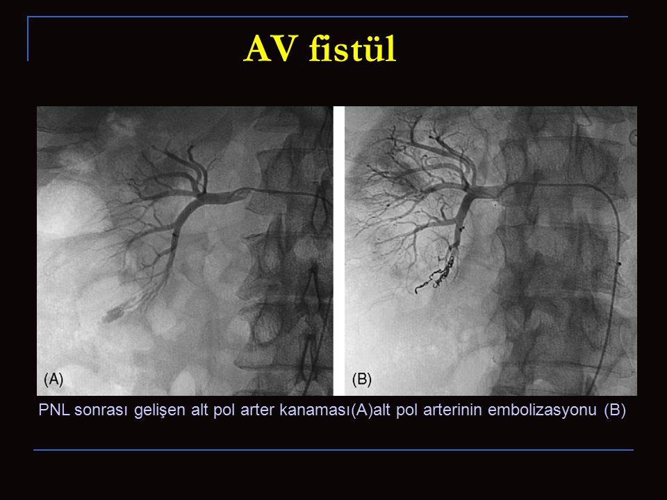 AV fistül PNL sonrası gelişen alt pol arter kanaması(A)alt pol arterinin embolizasyonu (B)
