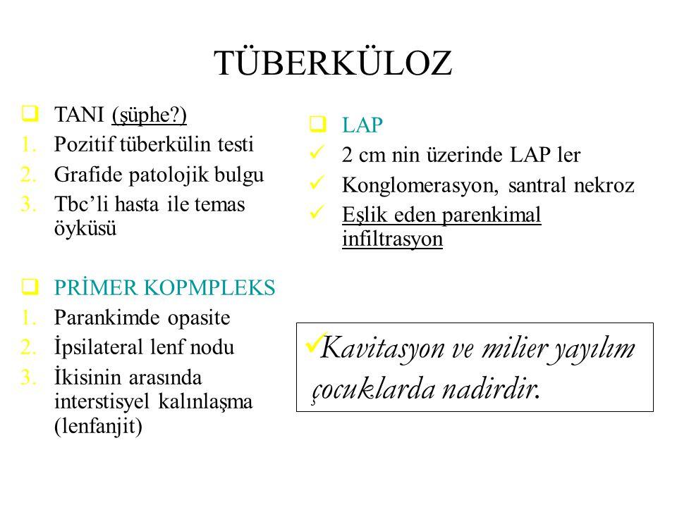 TÜBERKÜLOZ  TANI (şüphe?) 1.Pozitif tüberkülin testi 2.Grafide patolojik bulgu 3.Tbc'li hasta ile temas öyküsü  PRİMER KOPMPLEKS 1.Parankimde opasit