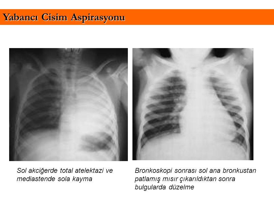 Sol akciğerde total atelektazi ve mediastende sola kayma Yabancı Cisim Aspirasyonu Bronkoskopi sonrası sol ana bronkustan patlamış mısır çıkarıldıktan
