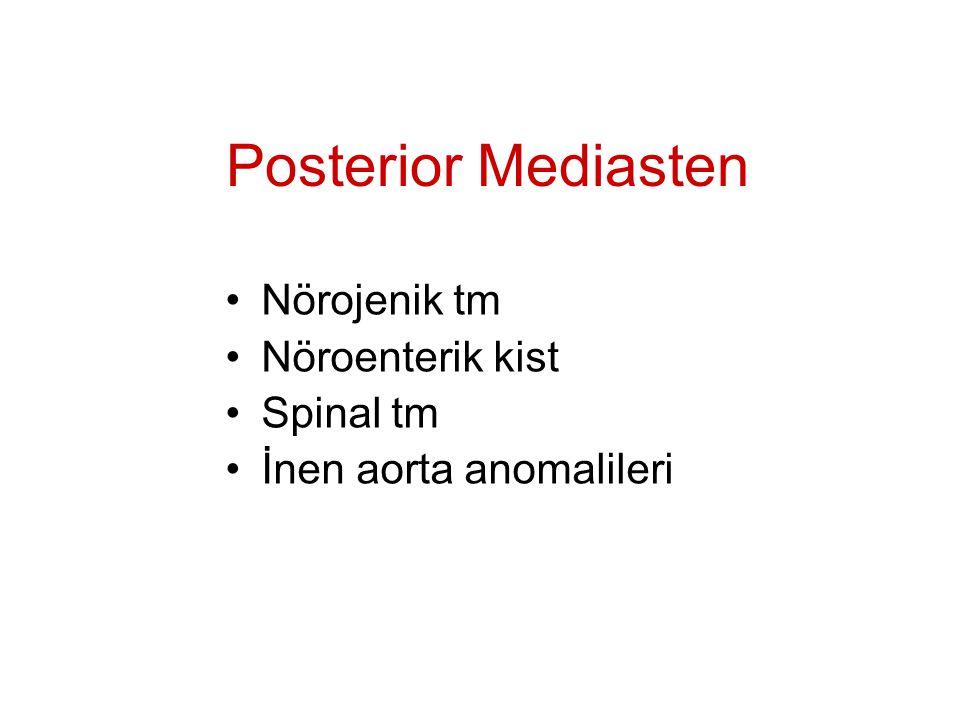 Posterior Mediasten Nörojenik tm Nöroenterik kist Spinal tm İnen aorta anomalileri