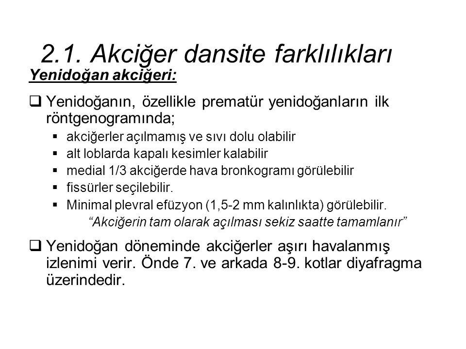 2.1. Akciğer dansite farklılıkları Yenidoğan akciğeri:  Yenidoğanın, özellikle prematür yenidoğanların ilk röntgenogramında;  akciğerler açılmamış v