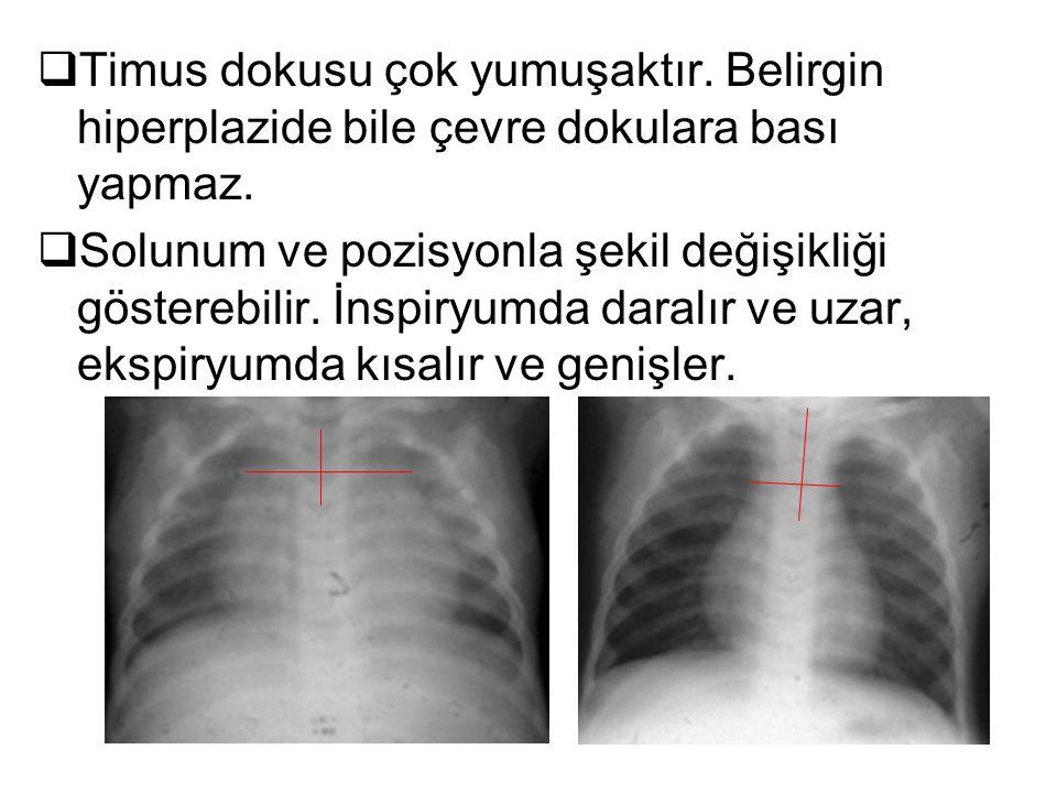  Timus dokusu çok yumuşaktır. Belirgin hiperplazide bile çevre dokulara bası yapmaz.  Solunum ve pozisyonla şekil değişikliği gösterebilir. İnspiryu