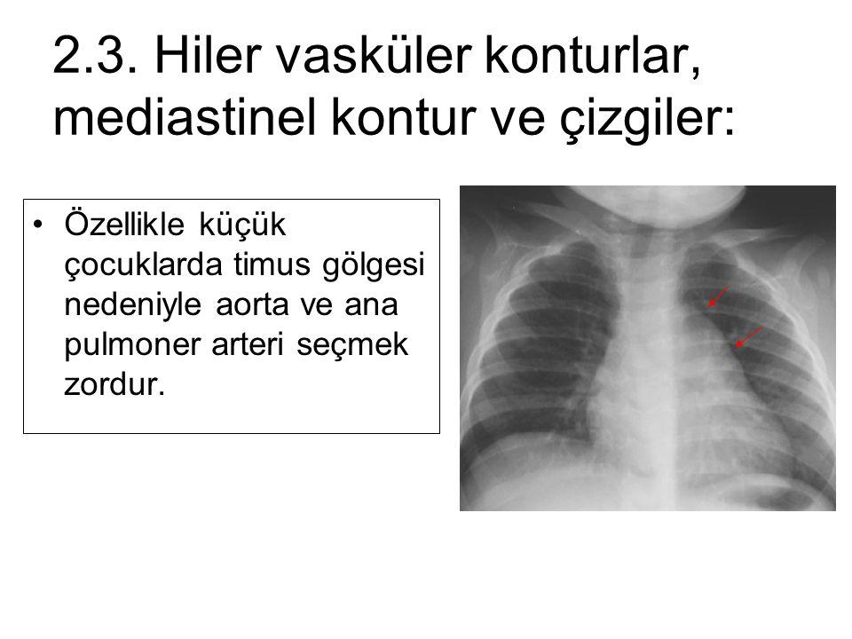 Özellikle küçük çocuklarda timus gölgesi nedeniyle aorta ve ana pulmoner arteri seçmek zordur. 2.3. Hiler vasküler konturlar, mediastinel kontur ve çi