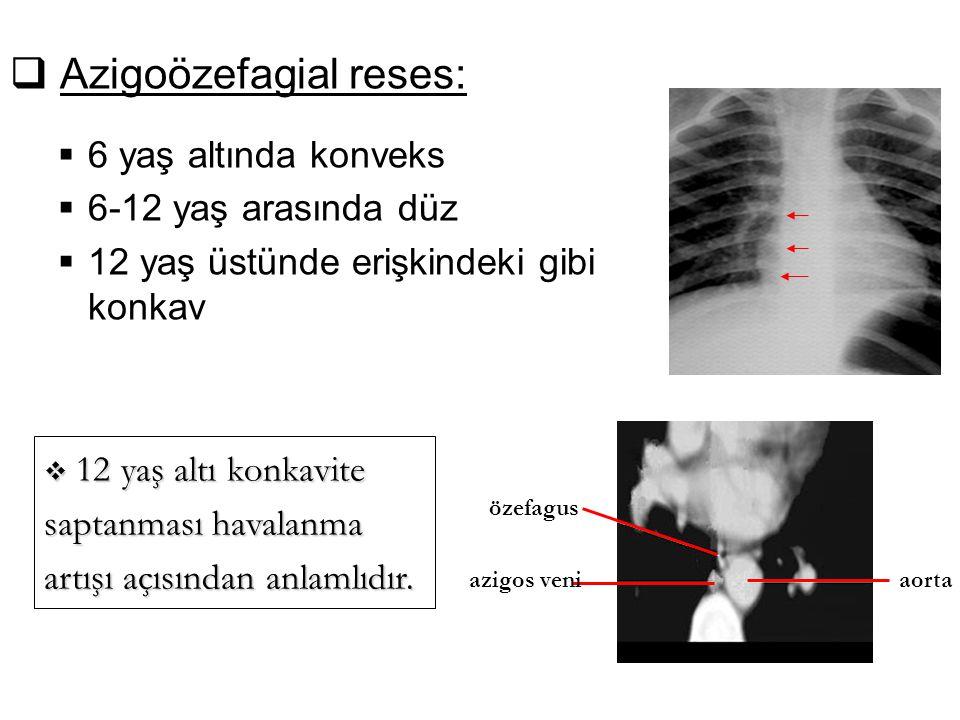  Azigoözefagial reses:  6 yaş altında konveks  6-12 yaş arasında düz  12 yaş üstünde erişkindeki gibi konkav özefagus azigos veni aorta  12 yaş a
