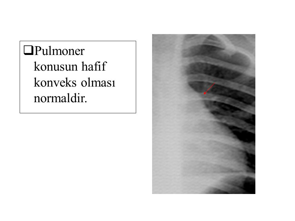  Pulmoner konusun hafif konveks olması normaldir.