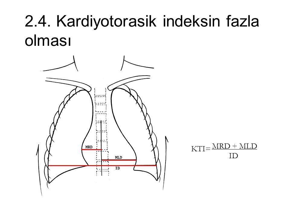2.4. Kardiyotorasik indeksin fazla olması MRD + MLD ID KTI=