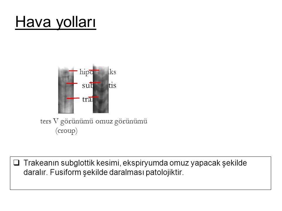  Trakeanın subglottik kesimi, ekspiryumda omuz yapacak şekilde daralır. Fusiform şekilde daralması patolojiktir. omuz görünümü hipofarenks subglottis
