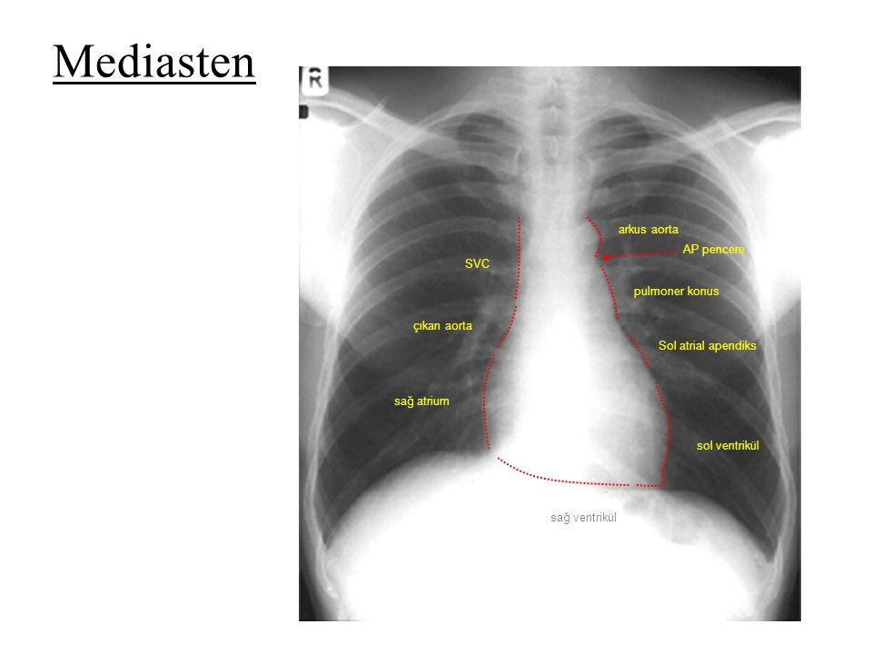 sağ atrium çıkan aorta SVC arkus aorta pulmoner konus Sol atrial apendiks sol ventrikül sağ ventrikül AP pencere Mediasten