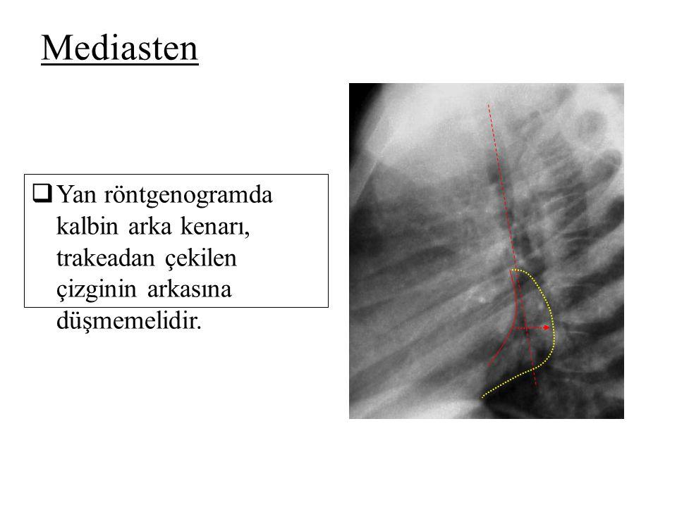  Yan röntgenogramda kalbin arka kenarı, trakeadan çekilen çizginin arkasına düşmemelidir. Mediasten