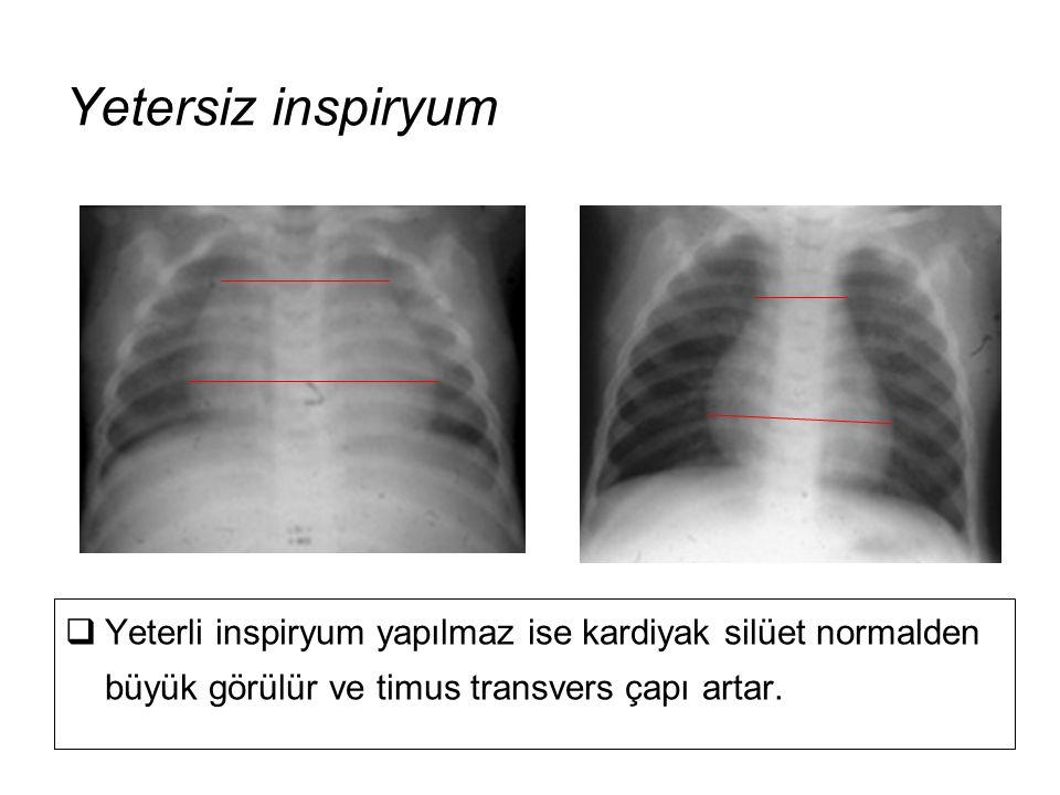  Yeterli inspiryum yapılmaz ise kardiyak silüet normalden büyük görülür ve timus transvers çapı artar. Yetersiz inspiryum