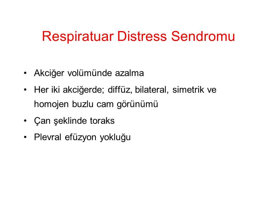Respiratuar Distress Sendromu Akciğer volümünde azalma Her iki akciğerde; diffüz, bilateral, simetrik ve homojen buzlu cam görünümü Çan şeklinde torak