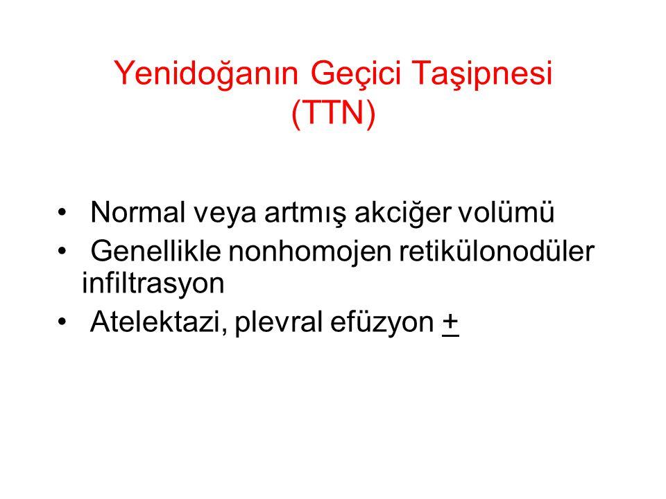 Yenidoğanın Geçici Taşipnesi (TTN) Normal veya artmış akciğer volümü Genellikle nonhomojen retikülonodüler infiltrasyon Atelektazi, plevral efüzyon +