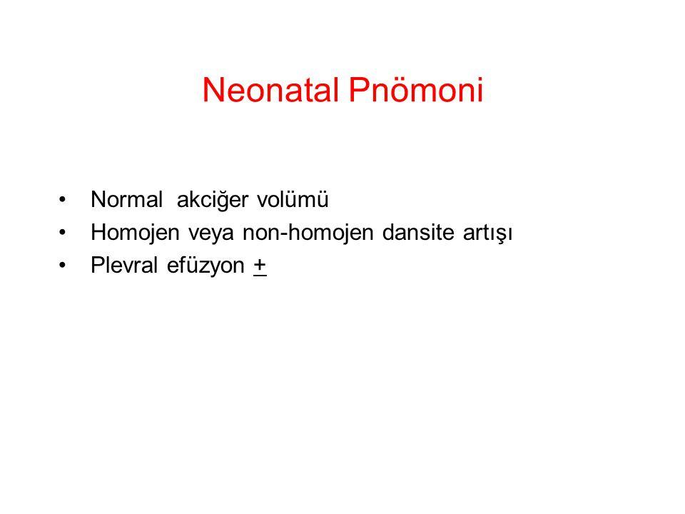 Neonatal Pnömoni Normal akciğer volümü Homojen veya non-homojen dansite artışı Plevral efüzyon +