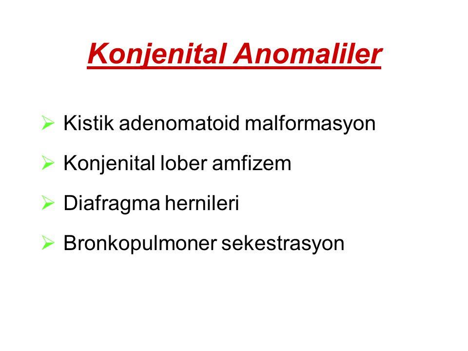 Konjenital Anomaliler  Kistik adenomatoid malformasyon  Konjenital lober amfizem  Diafragma hernileri  Bronkopulmoner sekestrasyon