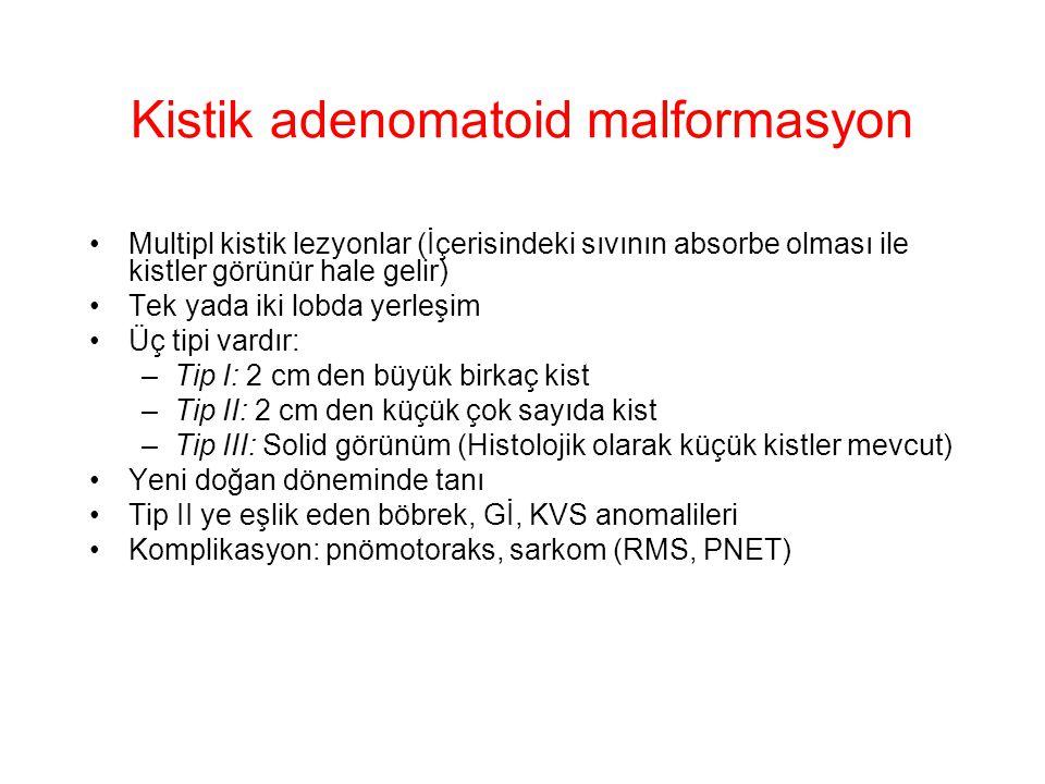 Kistik adenomatoid malformasyon Multipl kistik lezyonlar (İçerisindeki sıvının absorbe olması ile kistler görünür hale gelir) Tek yada iki lobda yerle